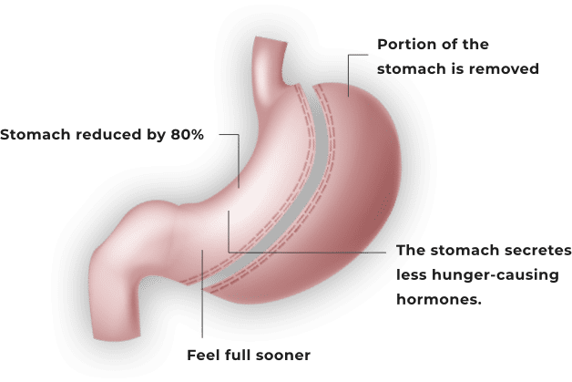 Gastric-sleeve-illustration-shadow